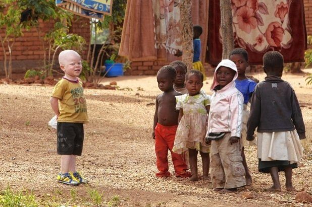 Albinos Hunted for Body Parts in Malawi; At Least 18 Killed Since 2014