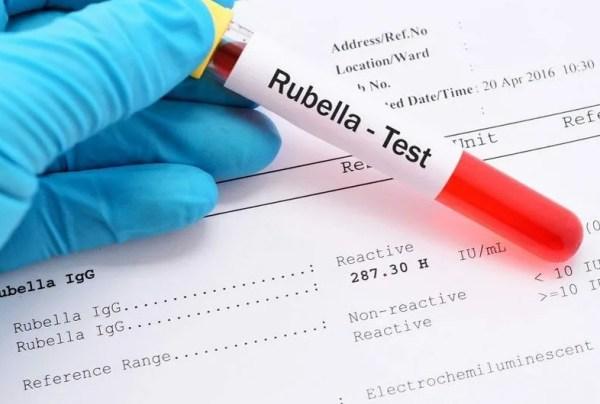 Анализ крови на антитела к коронавирусу: что это такое ...