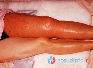 Что такое тромб в ноге — как распознать и лечить патологию? Тромб в ноге: возможные симптомы и способы лечения Как выглядит тромб на.