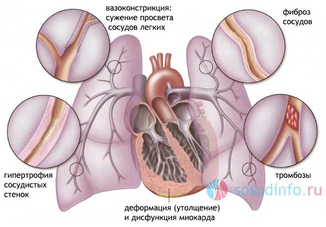 Дыхательная гимнастика при легочной гипертензии