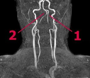 Патологическая извитость позвоночных артерий
