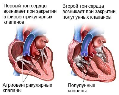 sveikatos širdies murmėjimas