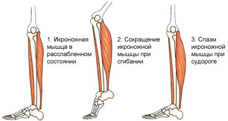 Сводит тело руки ноги как делать массаж лица роллером из камня