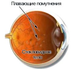 Звезды перед глазами причины. От чего звездочки в глазах: причины и лечение Почему появляются звездочки в глазах