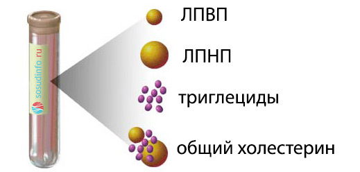 Методы исследования липидов. Липидограмма: суть анализа, что показывает, норма и отклонения, как сдавать Липидный обмен методы оценки