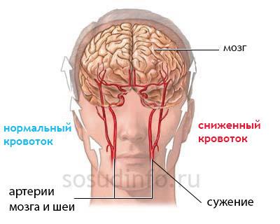 Стеноз интракраниального отдела правой позвоночной артерии