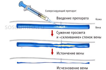 Сосудистая сетка на грудной клетке причины появления