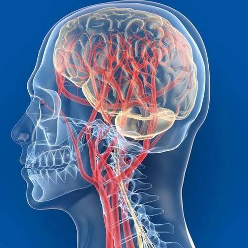 galvos skausmai su hipertenzijos distonija hipertenzija priepuoliui palengvinti