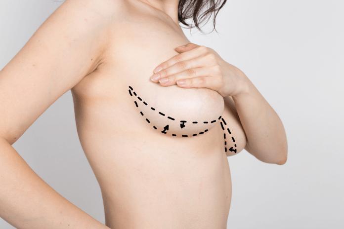 Breast Liposuction