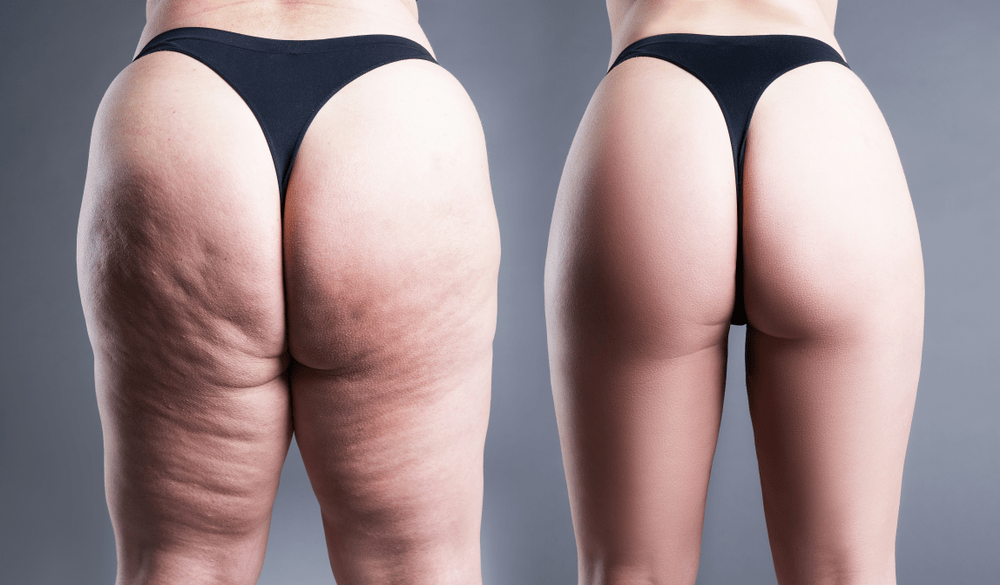 Butt Liposuction