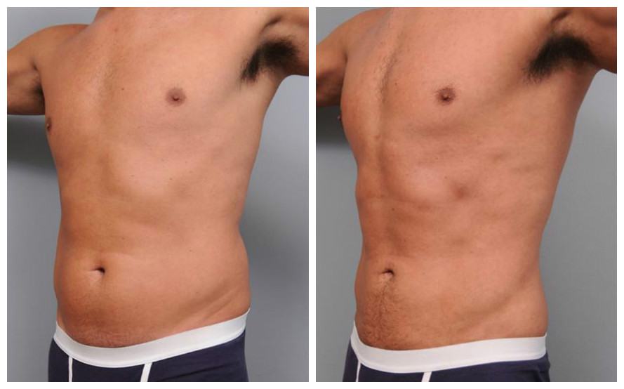 Liposuction Before and After Male