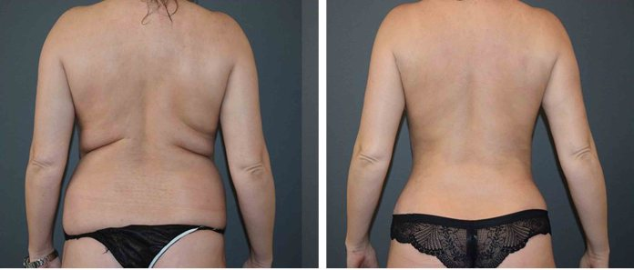 Liposuction before and After Love handles