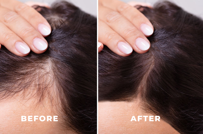 How does PCOS hair loss look like and how to camouflage it?