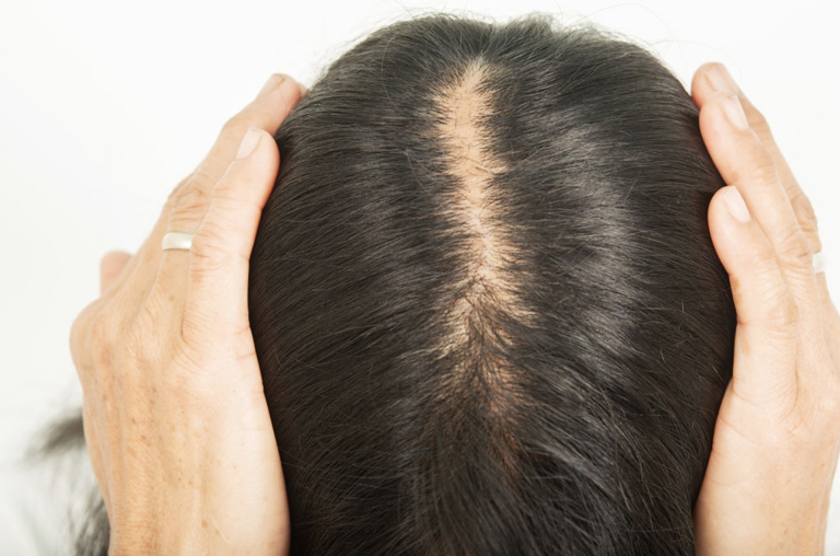 What is PCOS Hair Loss and Hair Growth