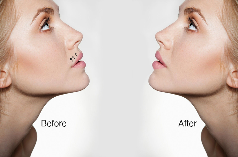 What is the outcome of a Lip Lift