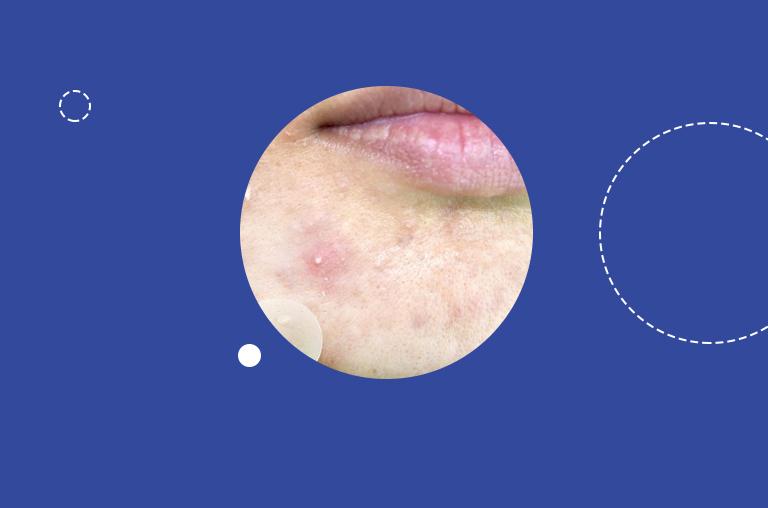 Causes of Keratin Plugs and Sebum Plugs
