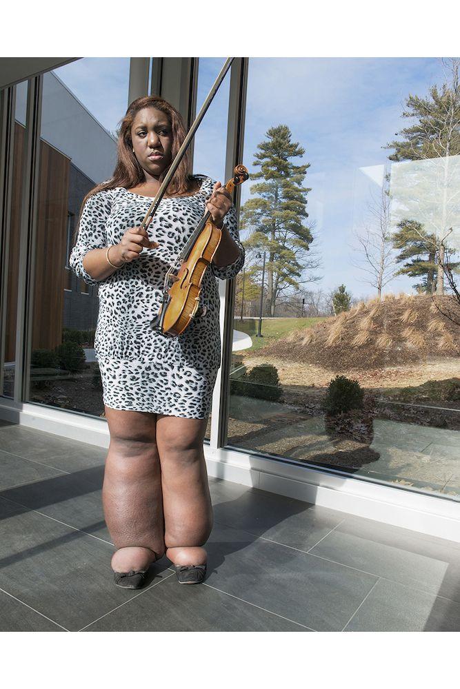 У Саманты лимфедема. Женщина поет в опере и играет на скрипке