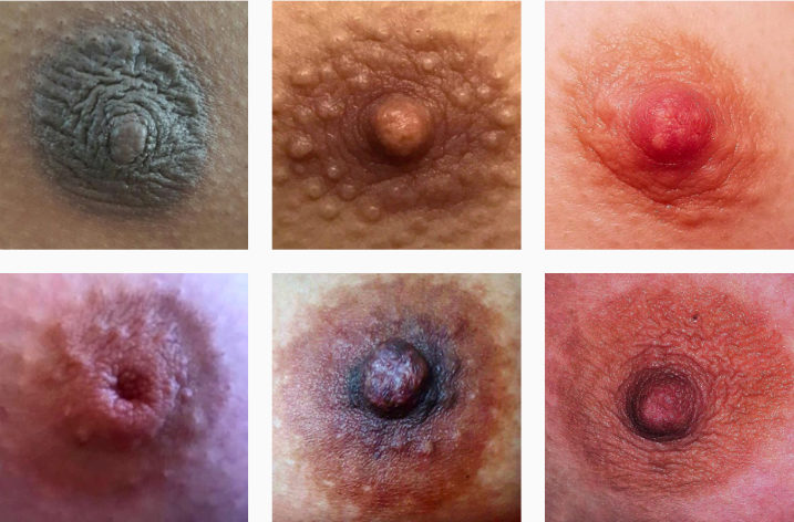 genderless-nipple