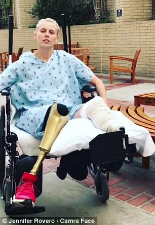 Модели, которая потеряла одну ногу из-за тампона, ампутировали и вторую
