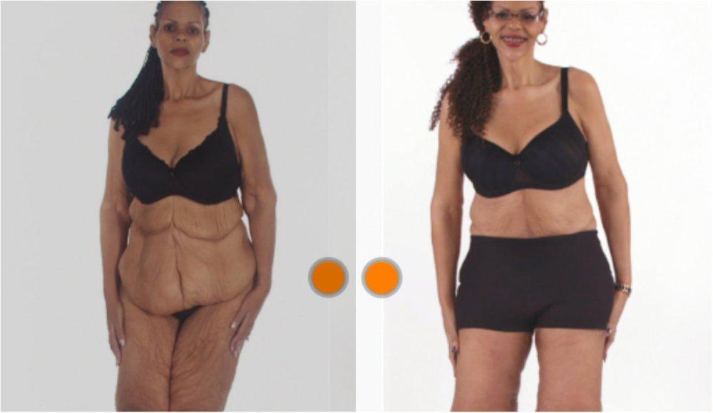видео очень после какого веса обычно лишняя кожа фото неприятная