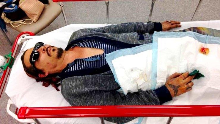 В сети появилось фото Джонни Деппа после нападения на него Эмбер Херд