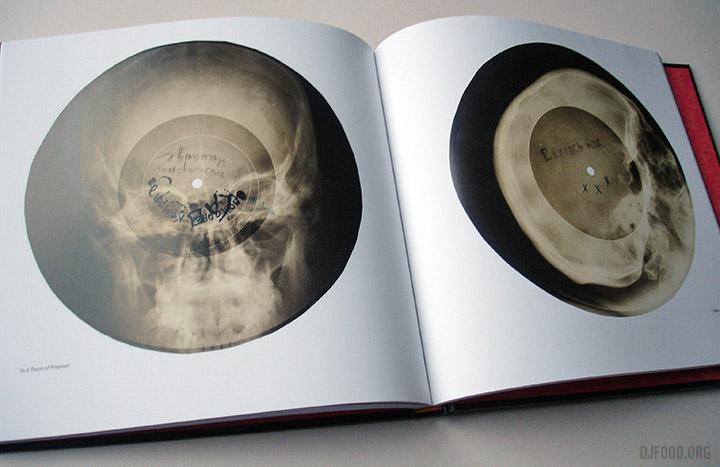 X-Ray-AudioBookinside3