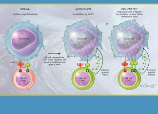 """""""When an NK cell sees an MHC-1 molecule, it doesn't note that there is a foreign peptide being displayed. Instead, its job is to patrol for self, and when it binds to MHC-1, the NK cell is shut off. Only when the self signal is insufficient is the NK cell released from its 'off' condition and freed to do its work,"""" Yokoyama explains. """"That's not the whole story, however, because NK cells also need to be activated."""" (Illustration by Jennifer E. Fairman, CMI, FAMI)"""