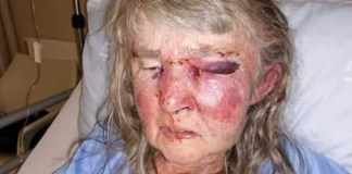 Touwsrivier attack, elderly woman violently assaulted. Photo: BKA Boere Krisis Aksie