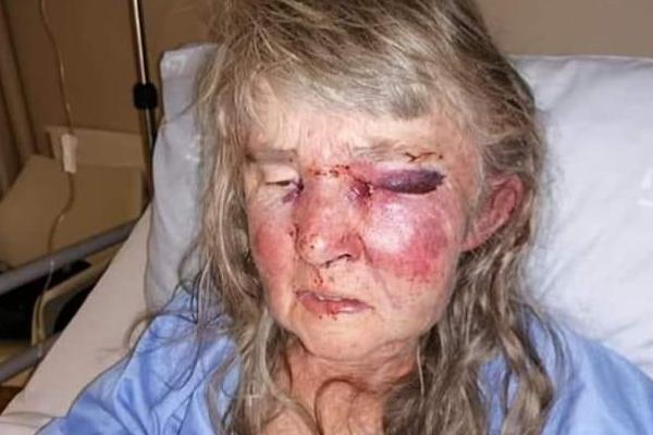 Touwsrivier attack, elderly woman violently assaulted. Photo: BKA Boere Krisis Aksie