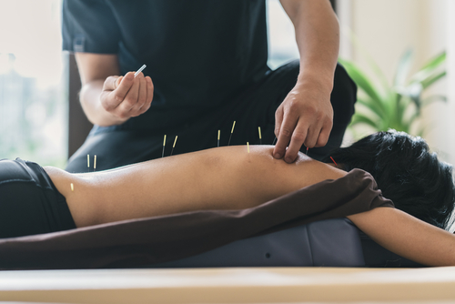 acupuncture cupping kinesio-taping car accident physiotherapy
