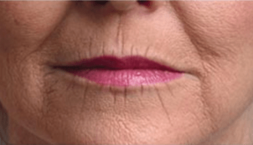 chin wrinkles when mouth closed