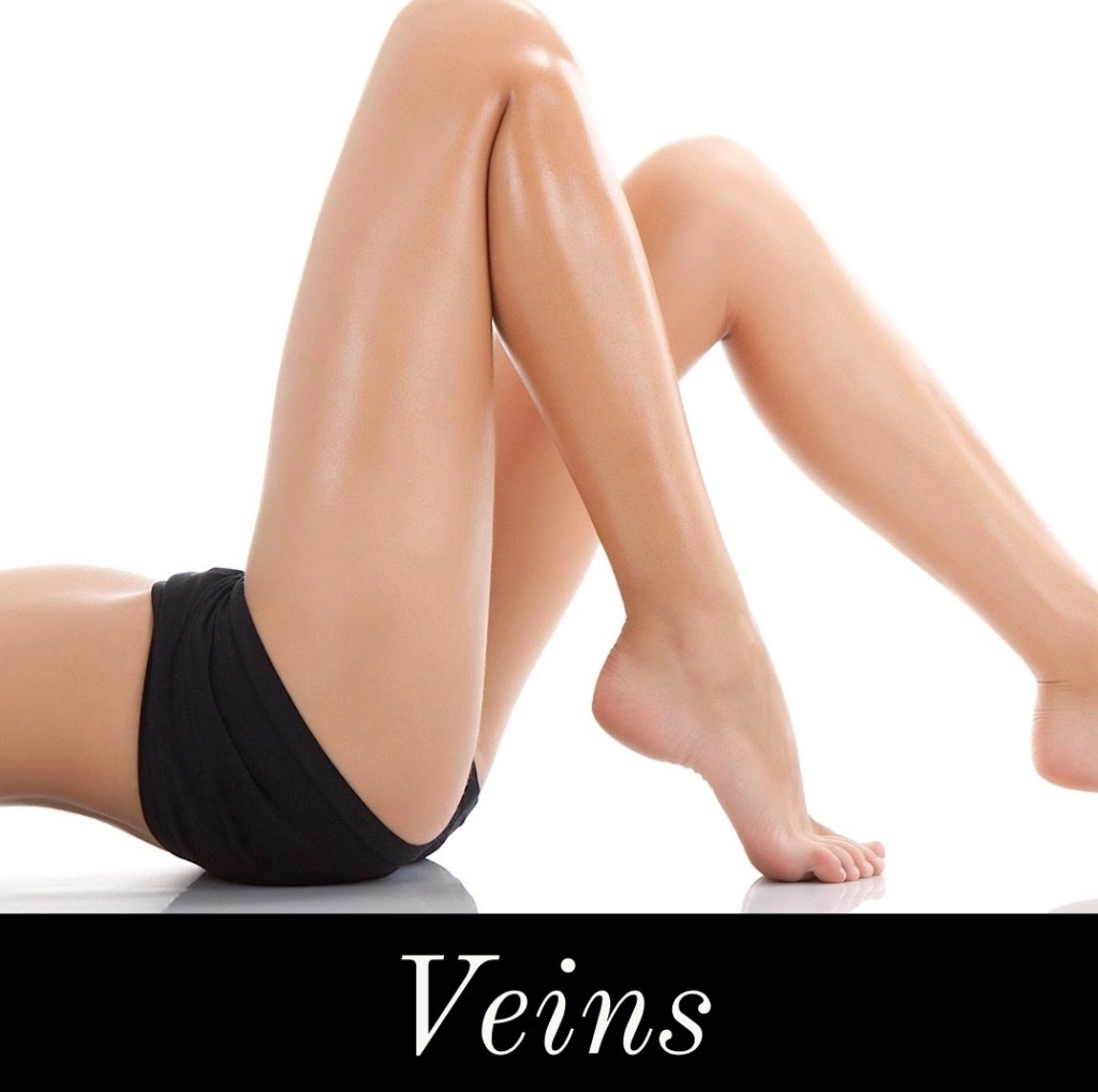 Veins Southern Vein and laser Atlanta