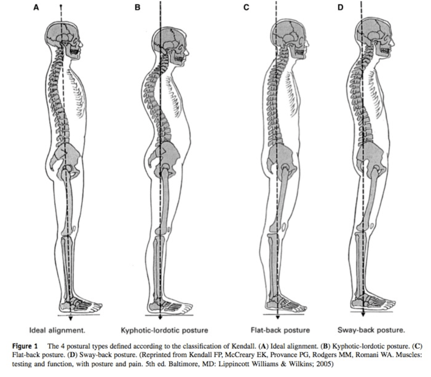 Check The Types Of Posture What Type Do You Have