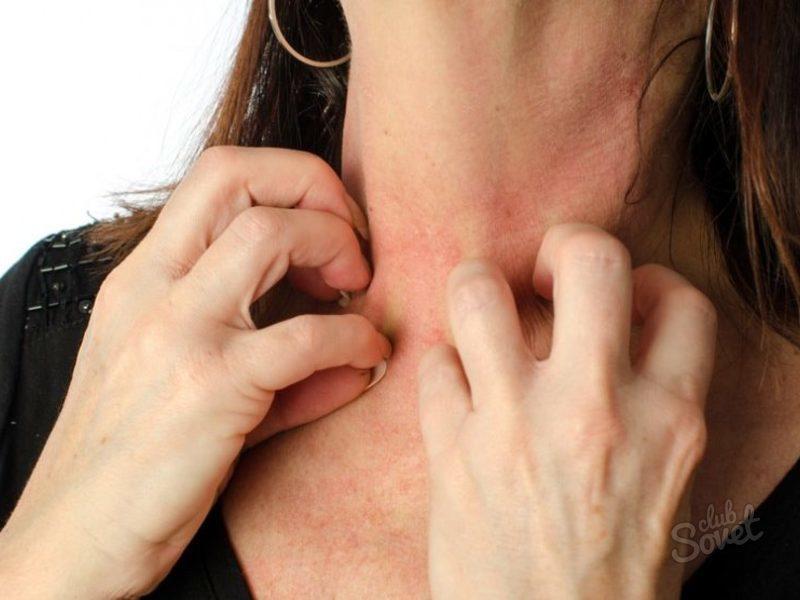 Повышение уровня тромбоцитов медикаментами и народными средствами. Народные рецепты против тромбоцитопении