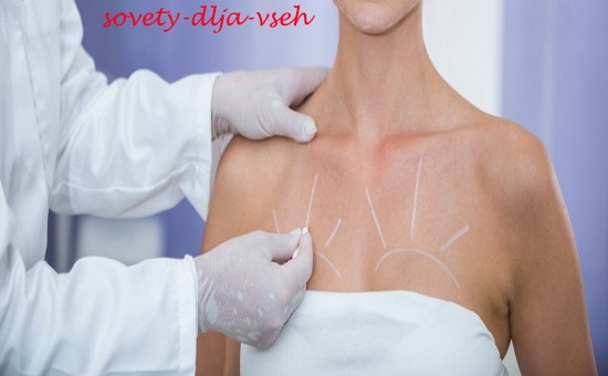 мезонити в грудь процедура
