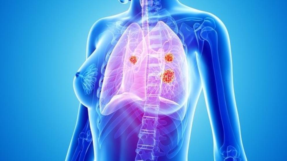 cancer de pulmon en mujeres no fumadoras