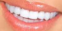 Cosmetic dentistry Mumbai