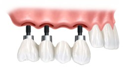 root canal treatment in Mumbai