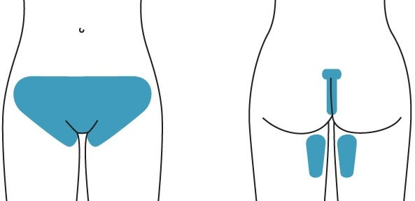 Brazilian wax anus