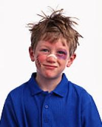 beaten_up_kid
