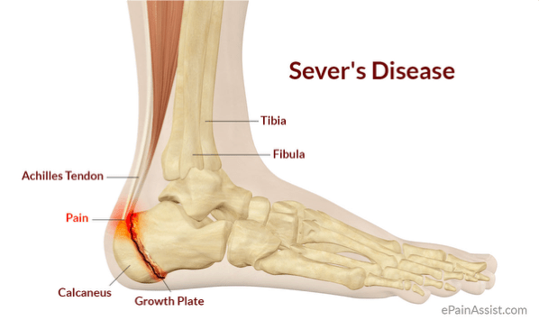 Severs Disease The Young Athletes Achilles Heel Sparcc Sports