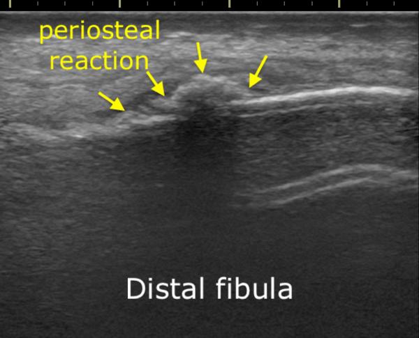 Ultrasound of fibular stress fracture