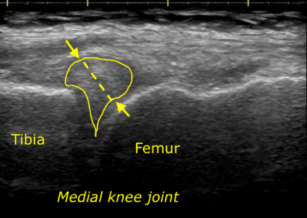 Ultrasound image of medial meniscus radial cleft tear