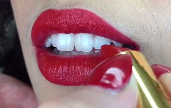 How to Have Whiter-Looking Teeth with Braces and Without! – Sparkle Prom Blog