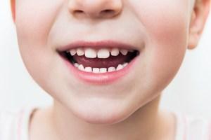 pediatric dentist in West Caldwell, NJ