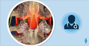 Central Stenosis