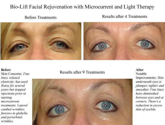 Bio-Lift Microcurrent Facial Rejuvenation_Case Study 1 Results_Spatique Skin Care_66223