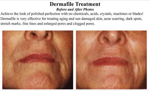 Dermafile_Treatment_Spatique_Skin_Care_66223