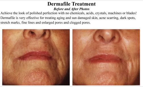Dermafile_Treatment_Spatique_Skin_Care_66223