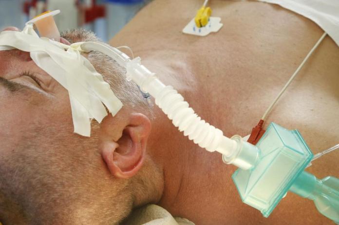 Intubated patient, on ventilator